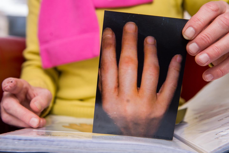 Danutė demonstruoja nuotraukas, kuriose matyti, kaip per metus kito skaudamas pirštas.<br>J.Stacevičiaus nuotr.