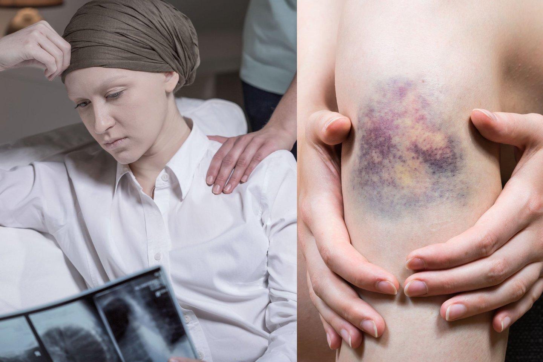 Per metus Europoje lėtine mieloidine leukemija iš 100 tūkst. gyventojų suserga 5-8 žmonės, o miršta 4-6.
