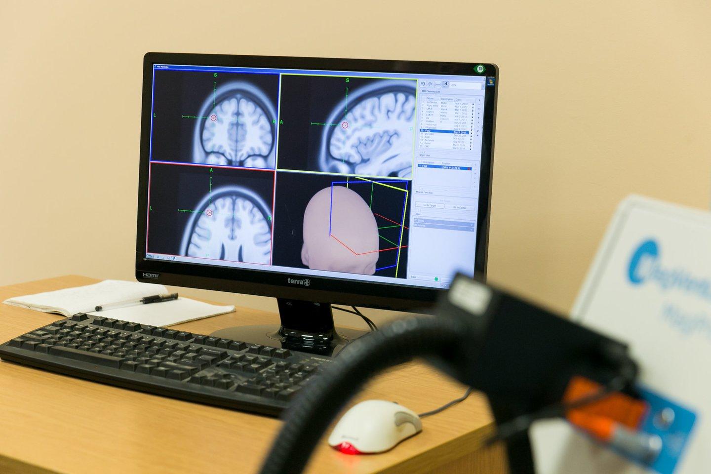 Gydymą transkranijine magnetine stimuliacija derinant su psichoterapija ir vaistais kai kuriems asmenims sėkmingai gydoma depresija.<br>T.Bauro nuotr.