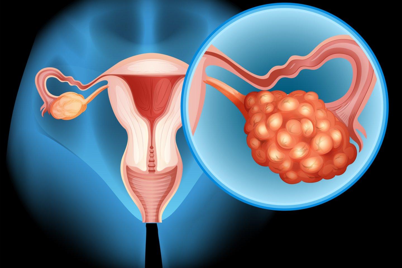 Kiekvienais metais pasaulyje diagnozuojama 528 tūkst. naujų gimdos kaklelio vėžio atvejų, nuo šios ligos kasmet miršta 266 tūkst. moterų.<br>123rf nuotr.