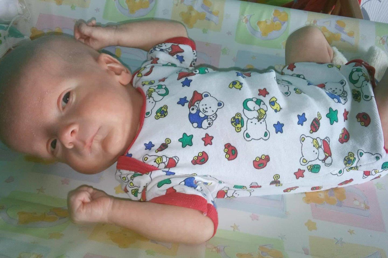 2 mėnesių berniukas prieš operaciją.<br>Asmeninio archyvo nuotr.