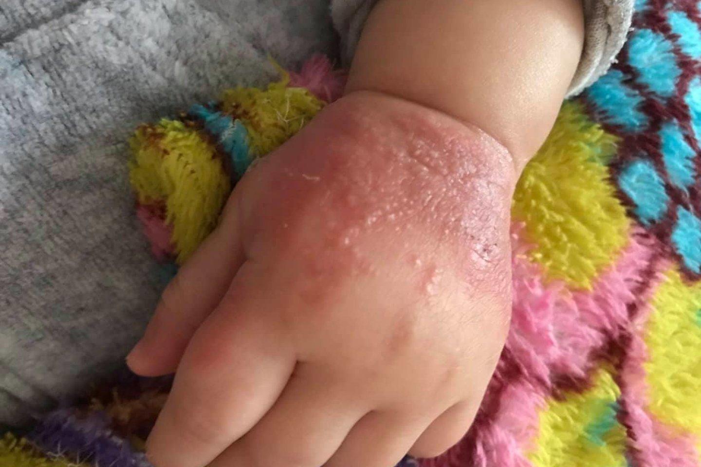 Mergaitei nuo pleistro pasireiškė alerginė reakcija.<br>Asm. archyvo nuotr.