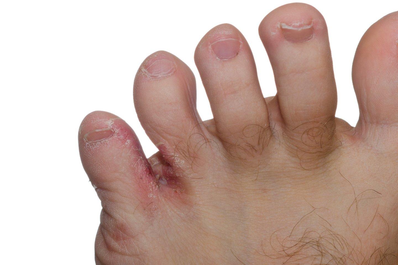 Dažniausiai grybelis prasideda nuo tarpupirščių ir nepastebimai. Dažniausiai – tarp 3 ir 4 ar 4 ir 5. Pirmiausia pasireiškia tarpupirščių odos pokyčiai – įtrūkimai.<br>123rf nuotr.