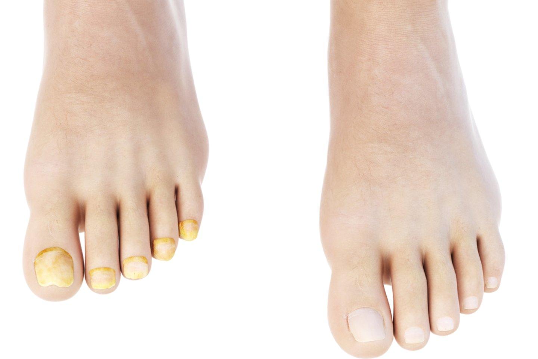 Geltoni nagai gali būti nulemti skirtingų dalykų, tokių kaip grybelis ar tabako dūmų paliktos žymės.<br>123rf nuotr.