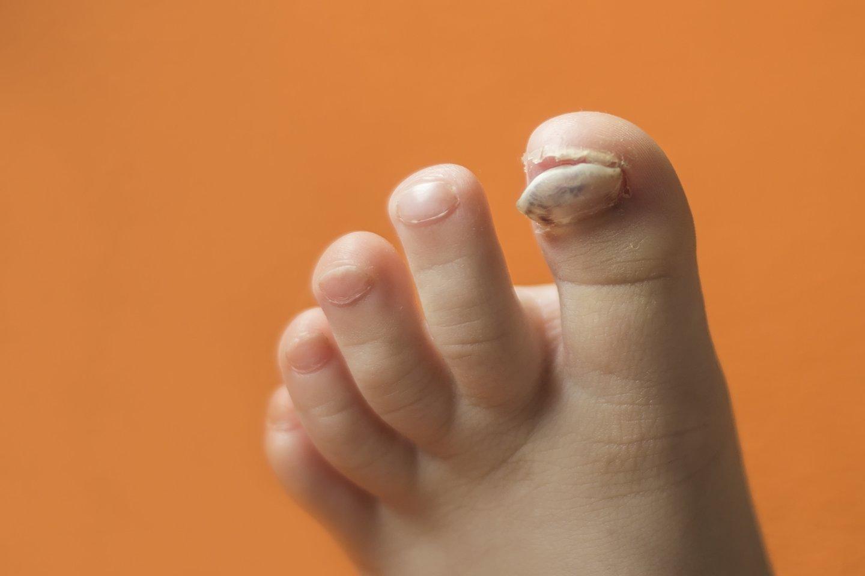 Dažniausia grybelinės infekcijos suvešėjimo vieta – didžiojo kojos piršto nagas. Iš pradžių jo šonai pagelsta, atsiranda nedidelių dėmelių, vėliau nagas gali net pradėti irti ir galiausiai visiškai sunykti.<br>123rf nuotr.