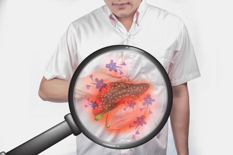 Kepenų ląstelėms pražūtingos gali tapti ir liekninančios tabletės, kontraceptikai, antibiotikai bei populiarūs vaistai nuo peršalimo, skausmo ar uždegimo, dideli kiekiai papildų ar iš užsienio atkeliavę nežinomi augaliniai produktai.<br>123rf nuotr.