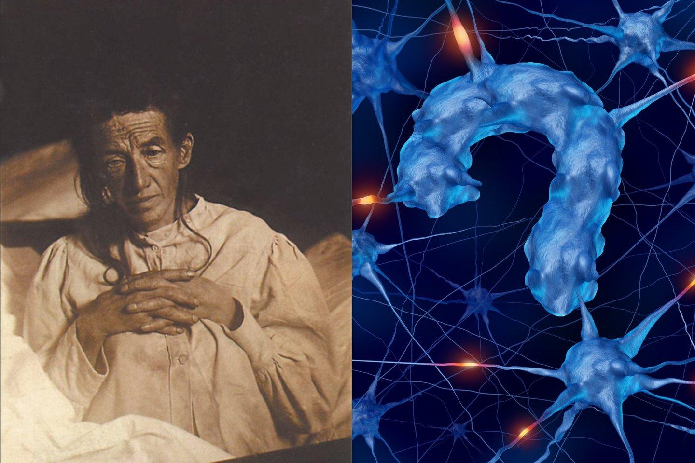 Alzheimerio liga pirmą kartą diagnozuota tik XX amžiaus pradžioje vokietei Augustei Deter.<br>Wikipedia.org ir 123rf nuotr.