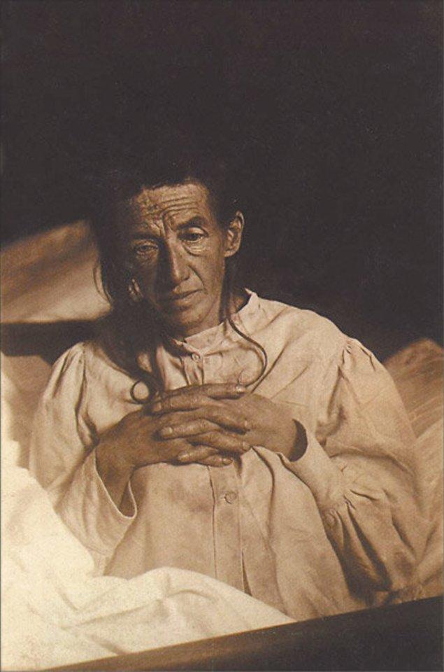Alzheimerio liga pirmą kartą diagnozuota tik XX amžiaus pradžioje vokietei Augustei Deter.<br>Wikipedia.org nuotr.