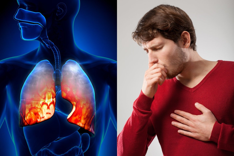 Daugiausia – 9,6 mln. gyvybių – per metus pasaulyje nusinešanti vėžio forma yra plaučių vėžys.<br>123rf nuotr.