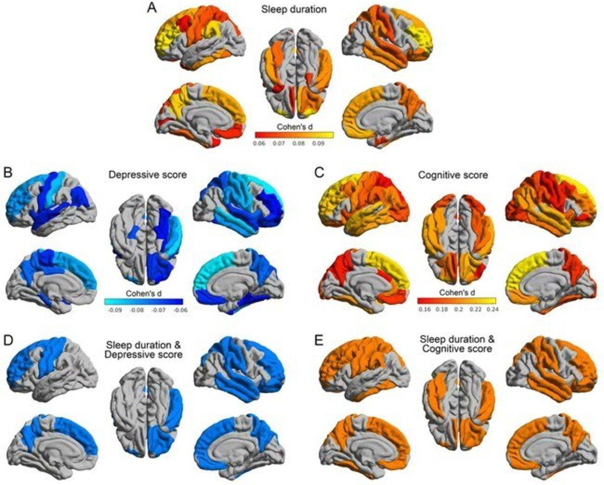 Miego trūkumas pažeidžia kai kurias smegenų dalis.<br>Tyrimo autorių atvaizdas.