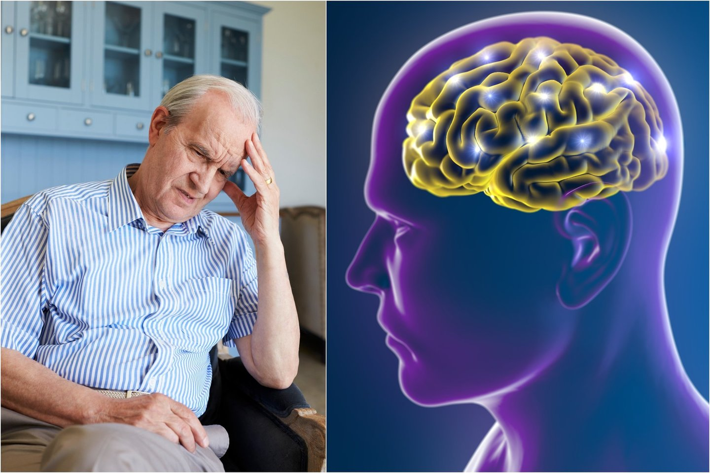 Alzheimerio liga yra siejama sutaubaltymų bei beta-amiloidinių plokštelių sankaupomis smegenyse.<br>123rf nuotr.