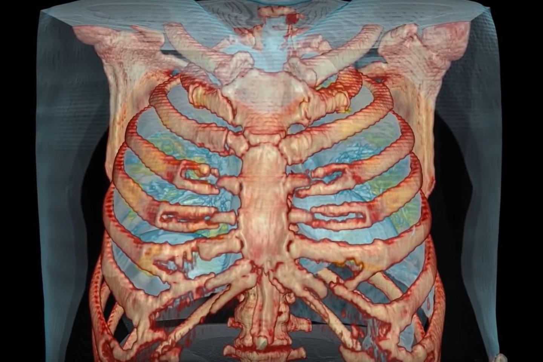 Naujojo koronaviruso pažeisti 59 metų vyro plaučiai.<br>Surgical Theater GW Mortman iliustr.