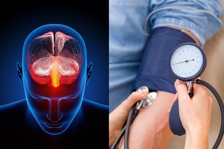 kas trečias turi hipertenziją hipertenzija virto hipotenzija