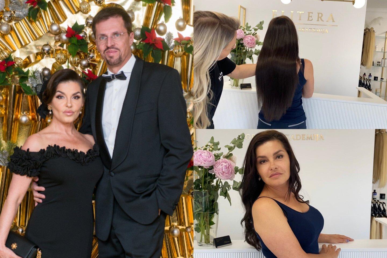 Kristinai Kaikarienei atlikta plaukų priauginimo procedūra.<br>lrytas.lt montažas.