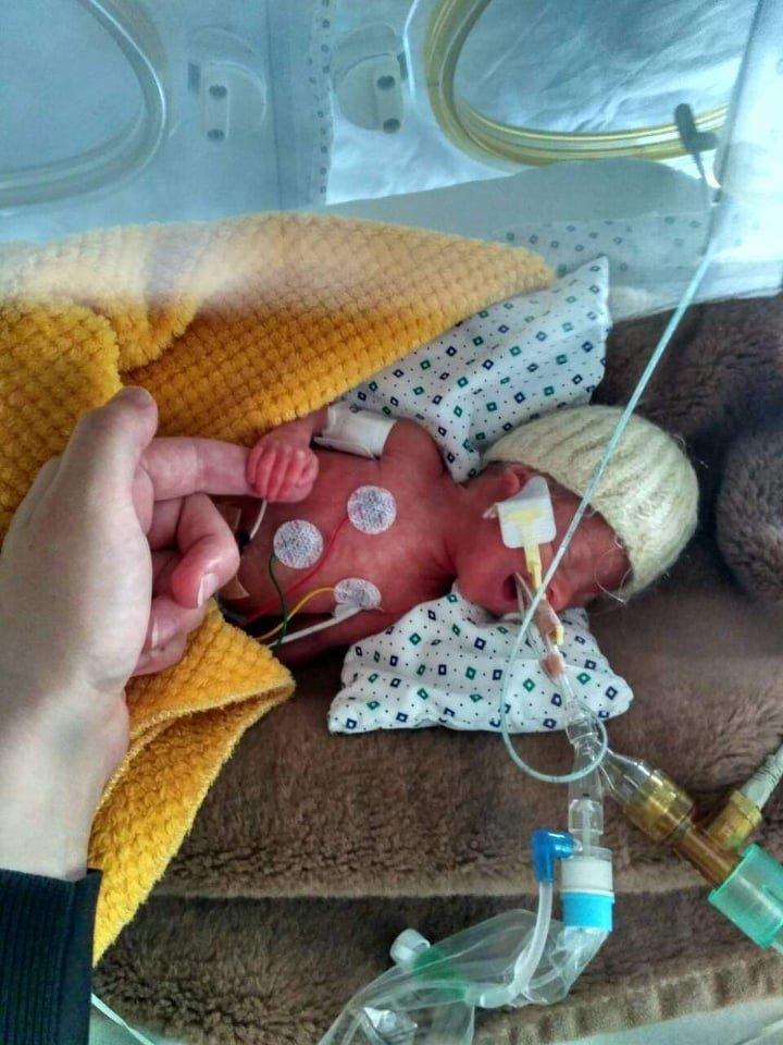 Kilianas gimė 23 nėštumo savaitę, sverdamas 660 g.<br>Asmeninio archyvo nuotr.