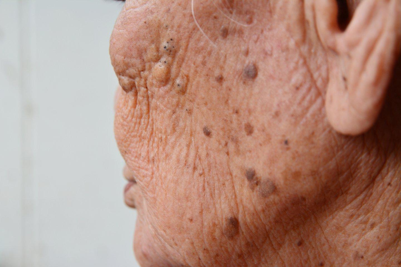 Pasibaigus vasarai, dauguma žmonių šį rudenį pasitiko su veido srityje išryškėjusiomis pigmentinėmis dėmėmis. <br>123rf nuotr.