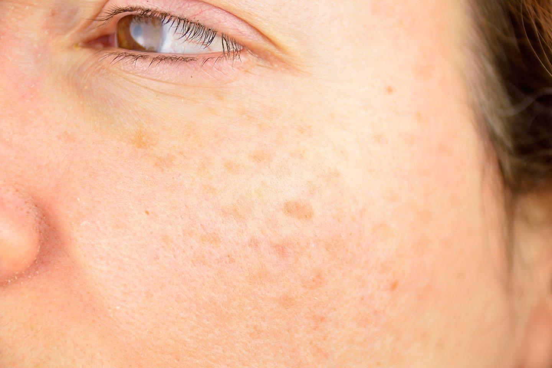 Pasibaigus vasarai, dauguma žmonių šį rudenį pasitiko su veido srityje išryškėjusiomis pigmentinėmis dėmėmis. <br>123rf.com nuotr.