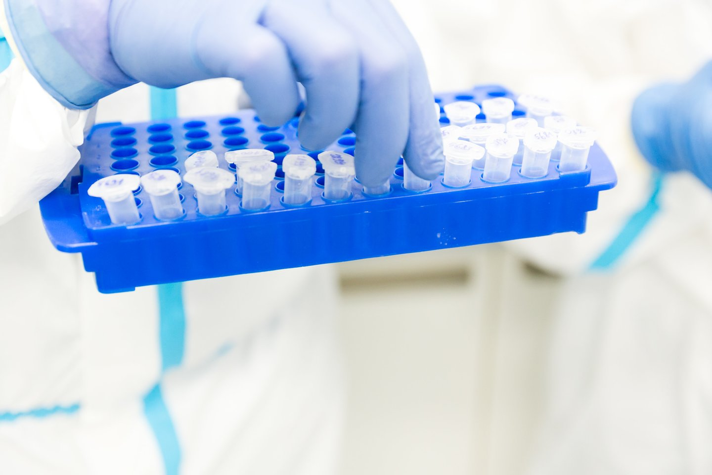 Nuo kovo iki spalio mėnesio imtinai valstybės užsakymuprivačiose laboratorijose atlikta kiek daugiau nei 241 tūkst.tyrimų.<br>T.Bauro nuotr.