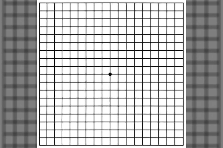 Amslerio tinklelio testas yra paprastas akių testas, kurį galite reguliariai atlikti namuose, norėdami stebėti savo regėjimą ir anksti aptikti regėjimo aštrumo pokyčius, kad ankstyvoje stadijoje galėtumėte juos gydyti.<br>Wikipedia org. pav.