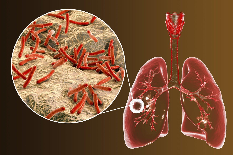 Tyrimas taip pat atskleidė, kodėl mirtingumas pacientų, prijungtų prie dirbtinių plaučių ventiliavimo sistemų dėl COVID-19, yra mažesnis už mirtingumą tų, kuriuos prie tokių pačių sistemų tenka jungti dėl įprasto plaučių uždegimo.<br>123rf iliustr.