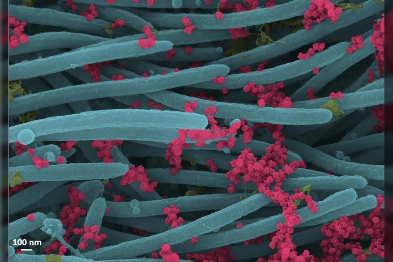 Koronavirusai, atakuojantys žmogaus plaučių ląsteles.<br>NIAID-RML nuotr.