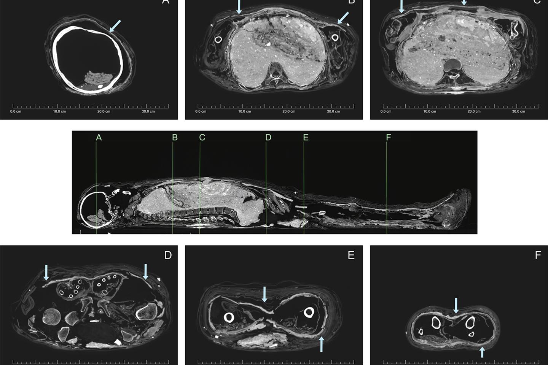 """Kompiuterinės tomografijos rezultas.""""Molio šarvas"""" įvairiais kampais.<br>""""PLOS One"""" iliustr."""