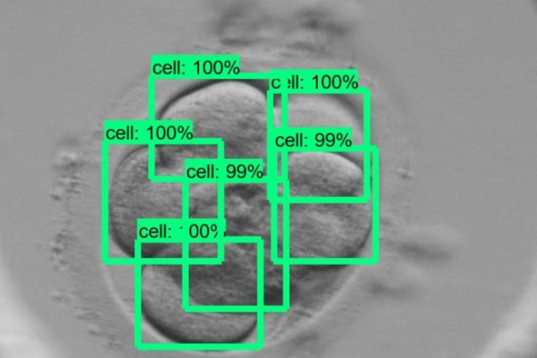 DI algoritmas suskaičiuoja, kiek yra ląstelių.<br>KTU nuotr.
