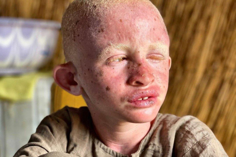 """Albinizmu sergantys vaikai dažniausiai naudojami ritualams, nes kai kurie sieja jų nekaltybę su didesne """"magiška"""" jėga.<br>Labdaros fondo """"Mila for Africa"""" nuotr."""