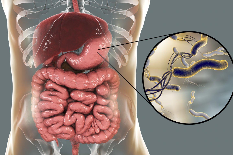 Nuo seno pastebėta, kad susirgimų skrandžio opalige padaugėja pavasarį.<br>123rf nuotr.