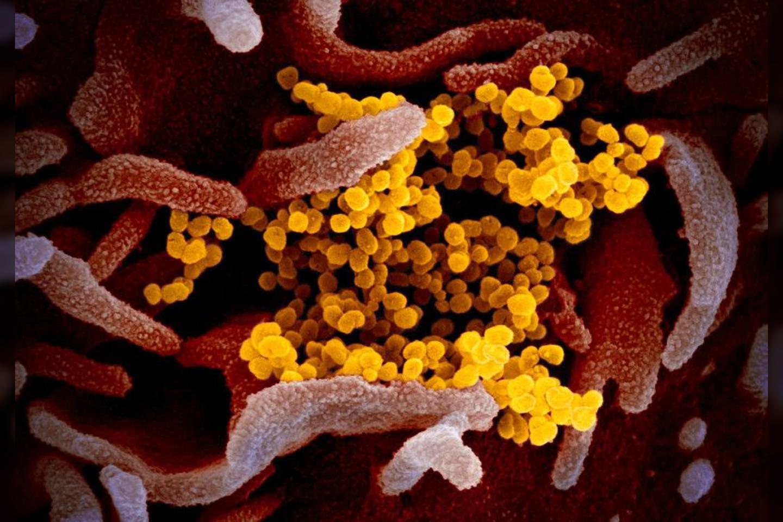 SARS-CoV-2 ant žmogaus lasteliu paviršiaus (realios nuotraukos su pridėtomis spalvomis).<br>NIAID-RML nuotr.