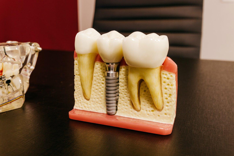 Kasmet Europos Sąjungoje maždaug du milijonus prarastų dantų pakeičia dantų implantai.<br>Pexels nuotr.