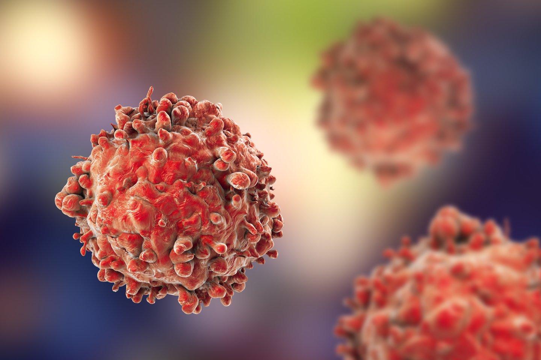 Vėžio ligos diagnozę išgirsta net ir jauni, sportiški, sveikai besimaitinę žmonės.<br>123rf nuotr.