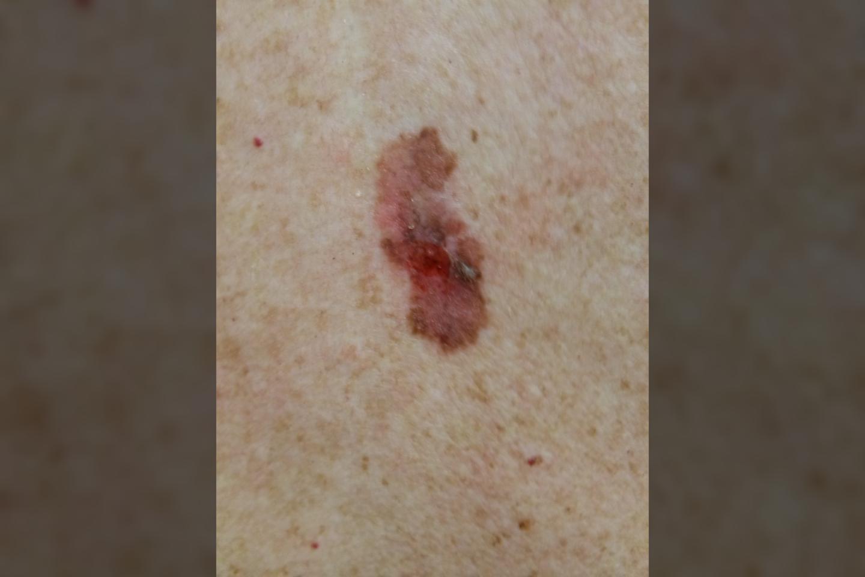 Melanomos pavyzdys<br>NVI nuotr.