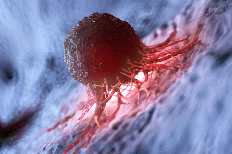 Vėžio riziką galima sumažinti, sako specialistai.<br>123rf nuotr.