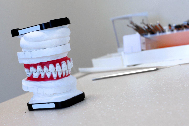 Gydytojai-odontologai pastebi, jog vasaromis susidaro nemažos laukiančiųjų eilės dėl padidėjusių traumų skaičiaus, todėl ir apsilankymo pas odontologą laukimas, ir gydymo procesas gali užtrukti.<br>V.Balkūno nuotr.
