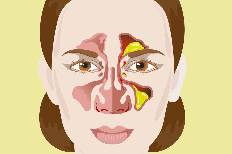 Nuolat užgulusi nosis ir sloga gali būti alergijos požymis.<br>123rf nuotr.