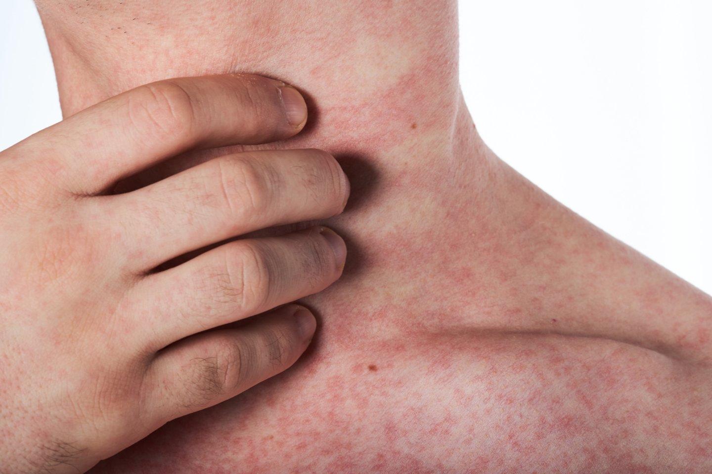 Alerginis kontaktinis dermatitas – egzogeninės kilmės odos uždegimas, kuris atsiranda dėl kontakto su alergenu.<br>123rf nuotr.