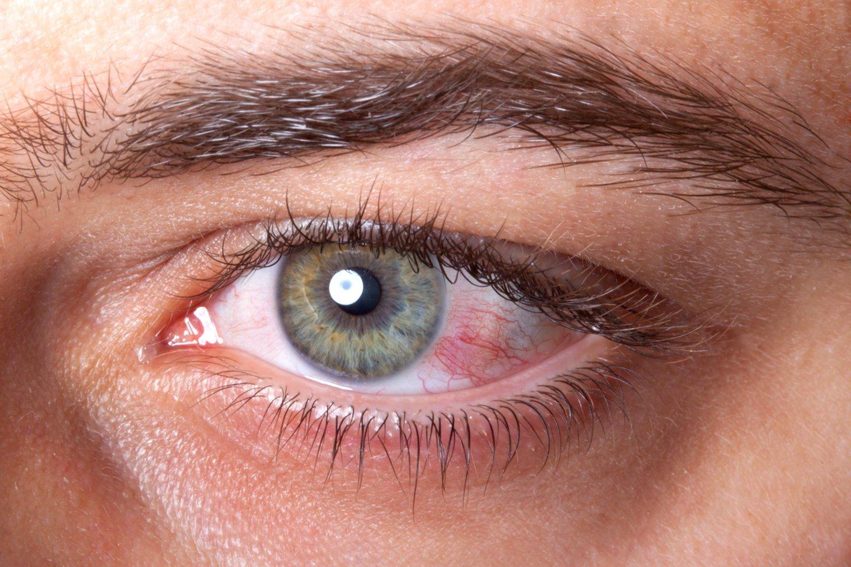 Atminkite, kad akių alergijos nėra užkrečiamos, tačiau jas gali būti gana sunku išgydyti. O jei tai – infekcija, rizikuojate pažeisti akį ar abi, be to, užkratą galite perduoti ir kitiems.<br>123rf nuotr.