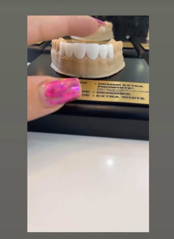 J.Partikė kreipėsi į odontologus.<br>Soc. tinklo nuotr.