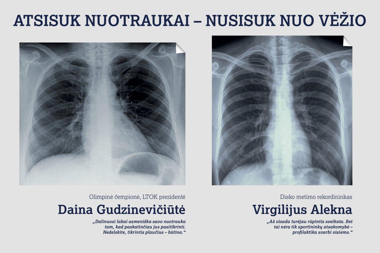 plaučių vėžys, prevencinė programa.<br>Pranešimo spaudai nuotr.